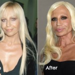 The Worst Celebrity Plastic Surgery Before and After Photos