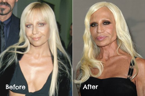 worst celebrity plastic surgery before and after photos