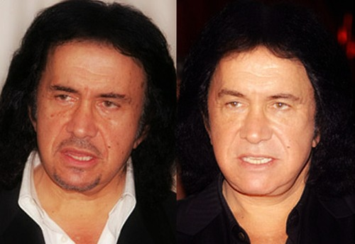 Gene Simmons Plastic Surgery